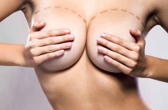 Увеличение груди, увеличение молочных желез