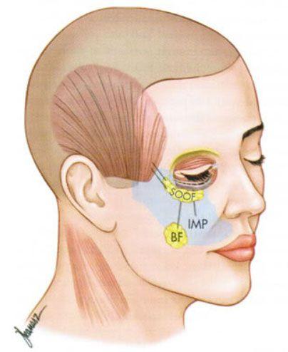 подтяжка средней зоны лица