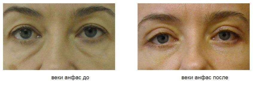 подтяжка круговой мышцы глаза(латеральная миопексия)