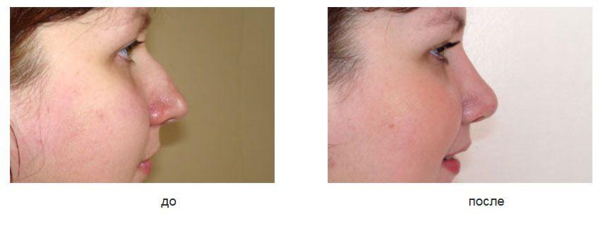 Ринопластика закрытым способом, пластика перегородки носа.