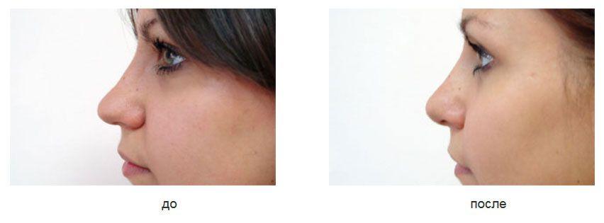 Ринопластика кончика носа.