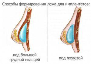 способы формирования ложа для имплантов