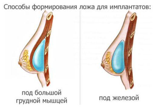 Как увеличит грудные железы в домашних условиях отзывы - Vendservice.ru
