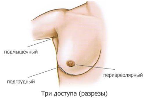 качественное хирургическое увеличение груди в ставропольском крае стоимость