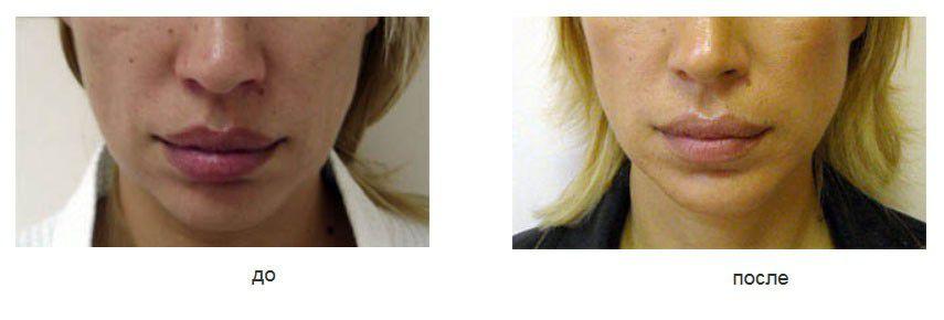 Липосакция подбородка и подтяжка овала лица и подбородка нитями Аптос