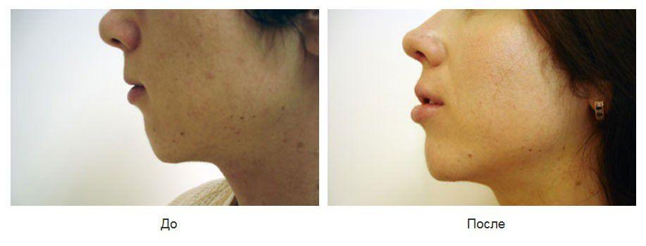 V-Y пластика губ, повторная ринопластика, реконструкция кончика носа