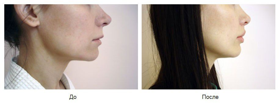 Пластика длинной верхней губы по типу булхорн, липофилинг губ