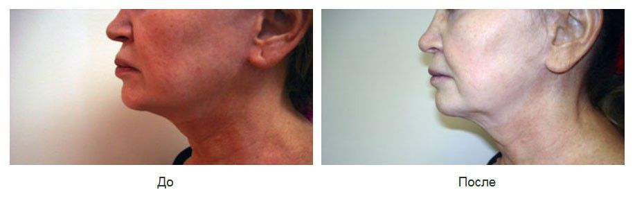Верхняя и нижняя хейлопластика после некорректного увеличения губ