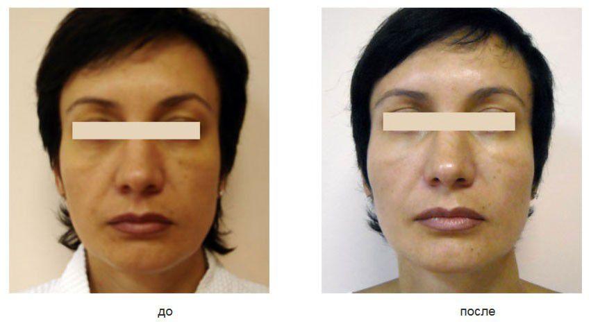 Липофилинг подглазничных, скуловых областей, щек и носогубных складок