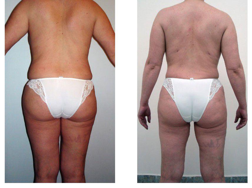Липосакция спины, талии, боков и бедер