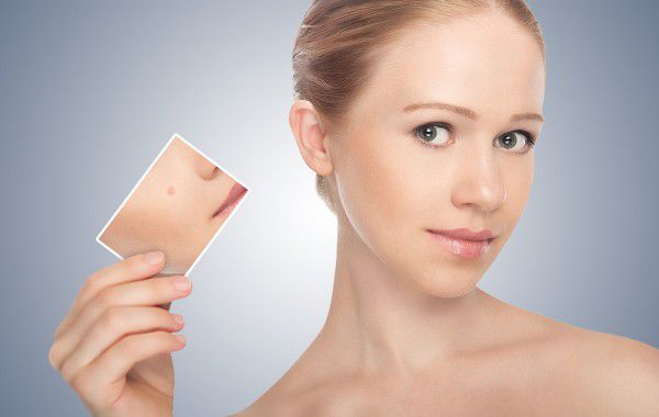 Удаление новообразований кожи