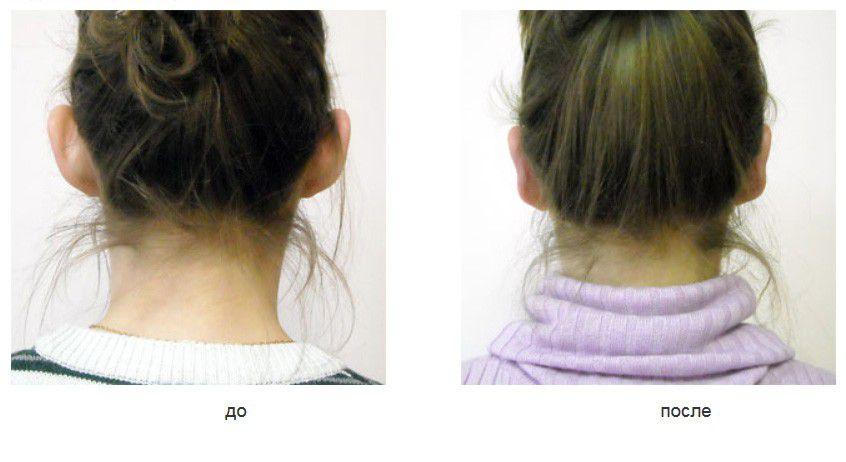 Коррекция торчащих ушных раковин