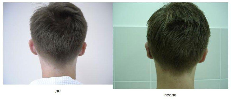 Коррекция левой ушной раковины