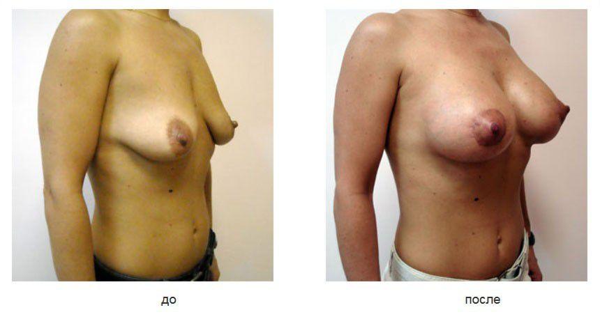 Периареолярная мастопексия, эндопротезирование молочных желез