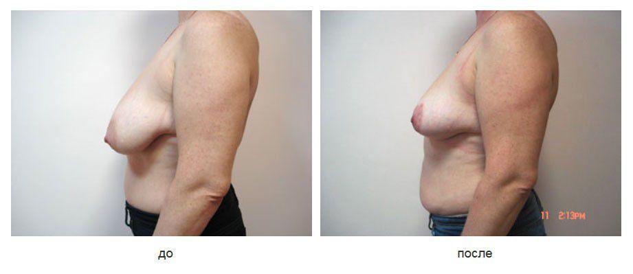 """Вертикальная редукционная маммопластика по Lejour. Вид """"после"""" через 1 год."""