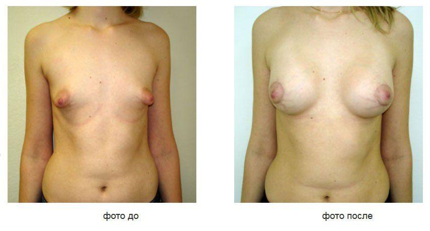 Тубулярная грудь, коррекция ареолы и паренхимы, подмышечное расположение имплантов.