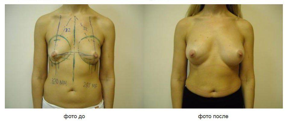 Посттравматическая деформация правой мол. железы. Подмышечное расположение имплантатов.