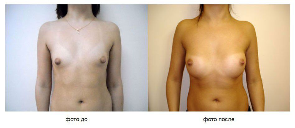 Cубфасциальное расположение анатомических имплантов, подмышечный доступ.