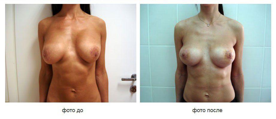 Реэндопротезирование, устранение деформации молочных желез.