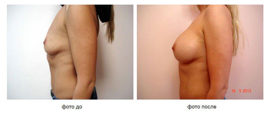 Увеличение груди, коррекция ассиметрии грудной клетки разновеликими имплантатами, подмышечное расположение имплантатов.