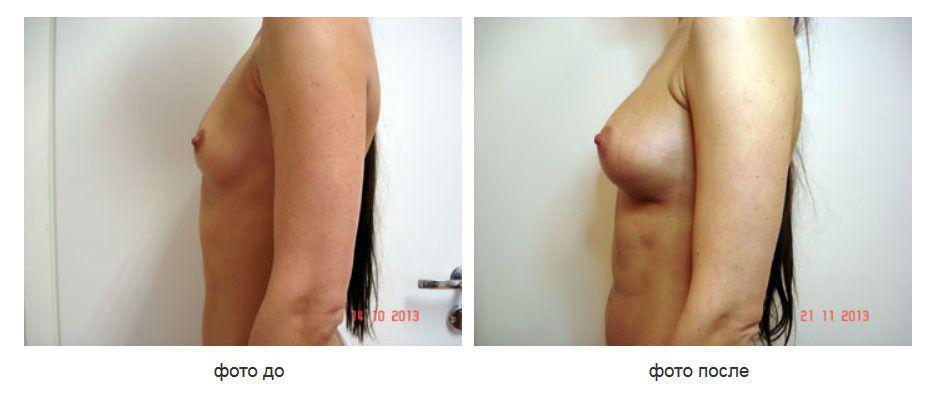 Увеличение молочных желез имплантатами Natrelle 510 стиль, подмышечное расположение имплантатов.