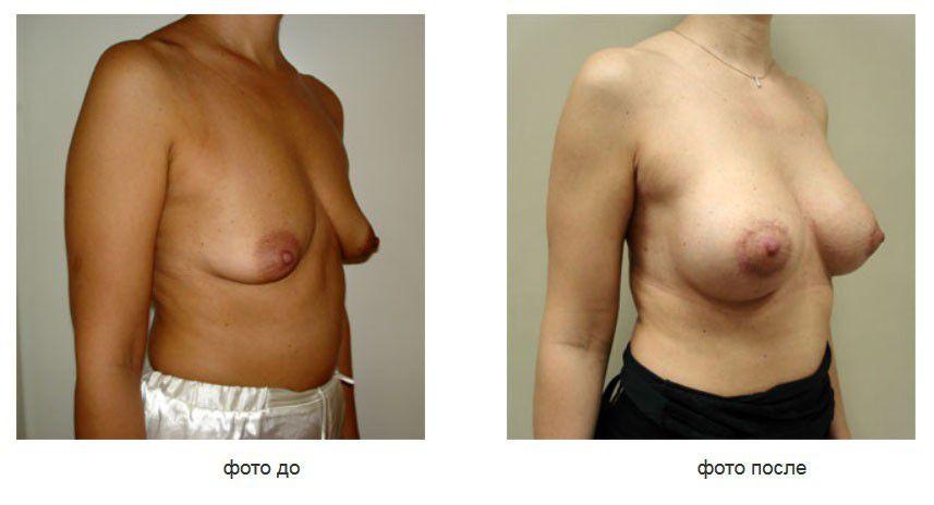 Птоз молочных желез, периареолярная мастопексия, субгландулярное расположение имплантата.