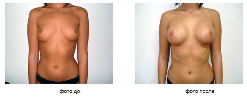 Увеличение груди силиконовыми имплантами, подмышечное расположение имплантов