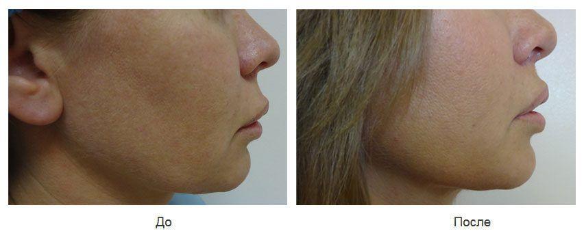 """Укорочение длинной верхней губы методом операции """"буллхорн"""""""