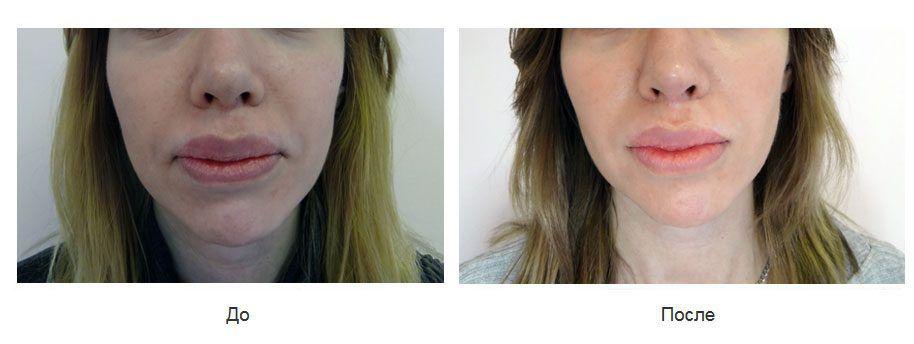 Выполнена операция ДАО ( резекция мышц-депрессоров углов рта внутриротовым доступом).