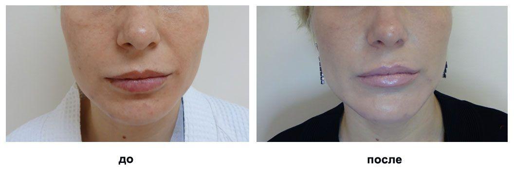 ментопластика фотографии до и после