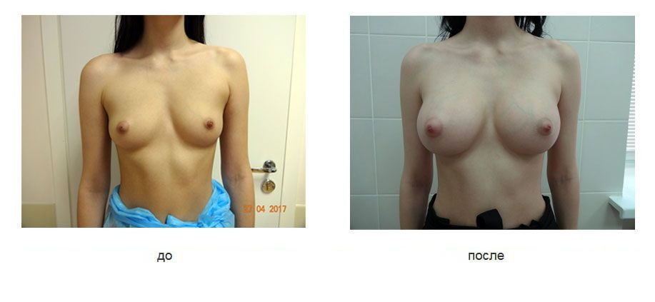 Эндоскопическое увеличение груди анатомическими имплантатами, доступ через подмышку.