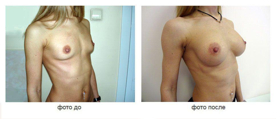 Увеличение молочных желез, анатомические импланты, подмышечное расположение
