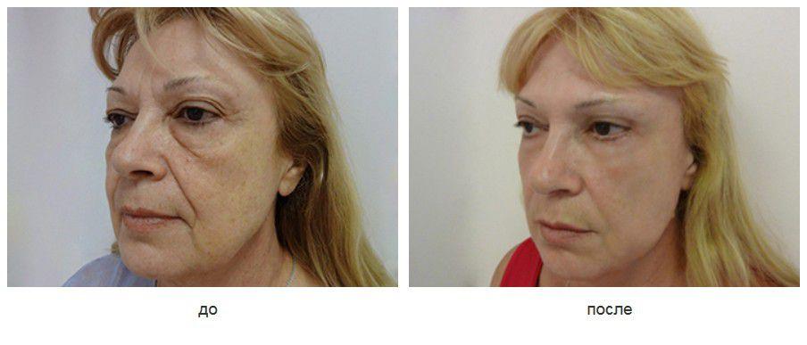 Эндоскопический лифтинг средней зоны лица, височный лифтинг, верхняя и нижняя блефаропластика.