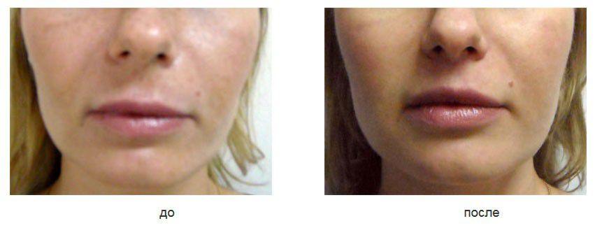 Удлиненная верхняя губа. Верхняя хейлопластика
