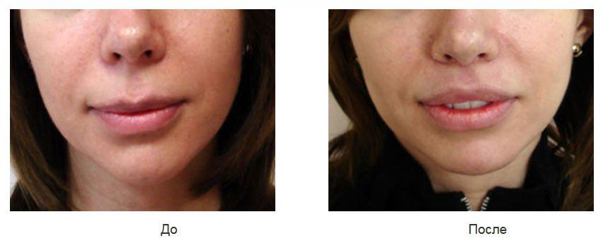 Укорочение длинной верхней губы