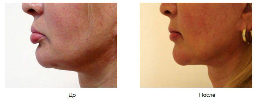 Удаление силиконового геля из нижней губы