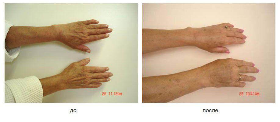 Липофилинг тыльных поверхностей кистей рук