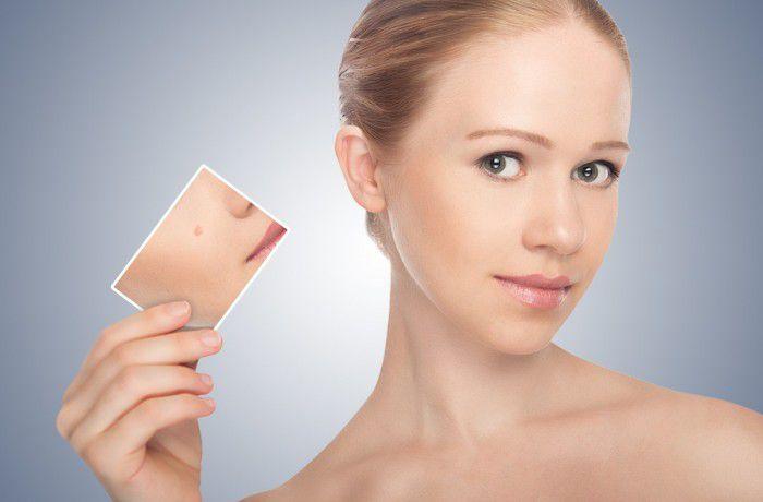Удаление новообразований кожи фотографии до и после