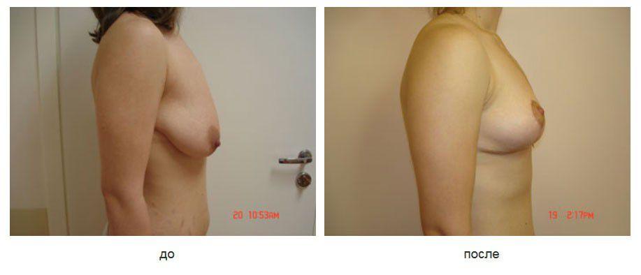 Птоз молочных желез. Вертикальная мастопексия без изменения размера молочных желез.