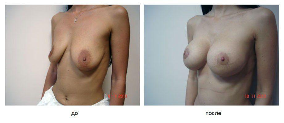 Периареолярная мастопексия, внутренняя шовная мастопексия, коррекция ассиметрии молочных желез разновеликими имплантатами, подмышечное расположение имплантатов.