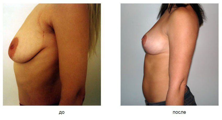 Вертикальная мастопексия