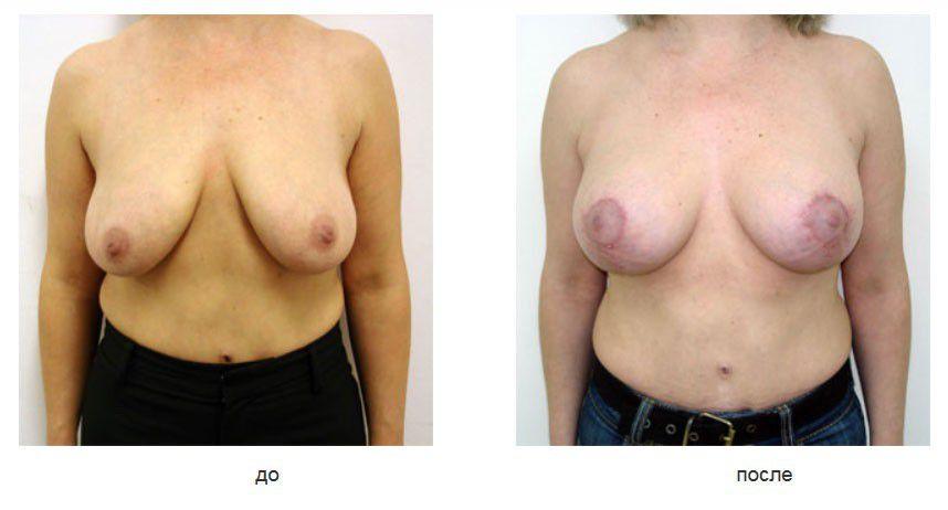 Вертикальная мастопексия и эндопротезирование молочных желез с подмышечным расположением имплантов