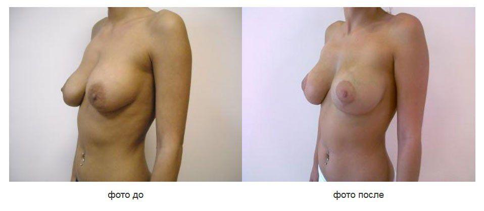 Реэндопротезирование молочных желез, вертикальная мастопексия, подмышечное расположение импланта