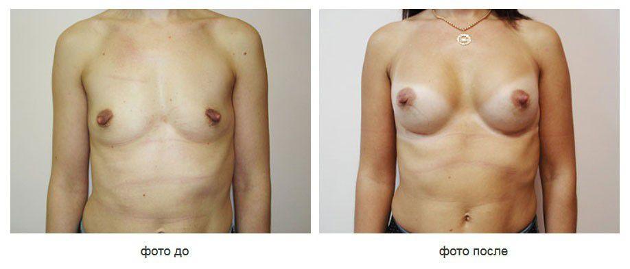 Увеличение молочных желез,подмышечное расположение имплантов.