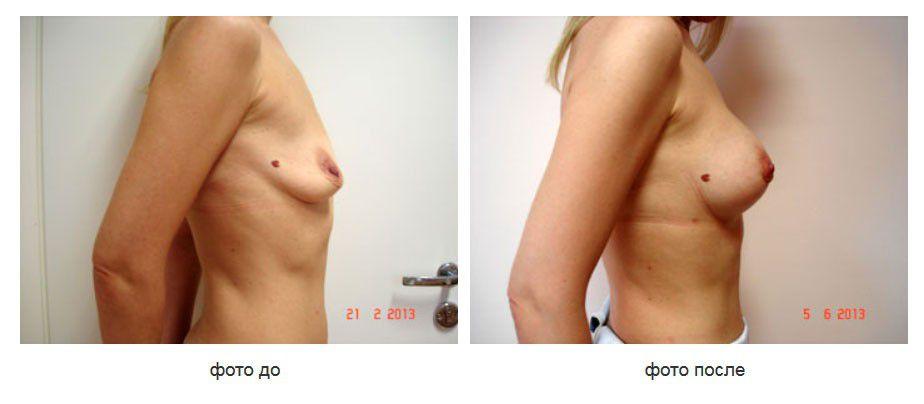 Увеличение молочных желез, периареолярная мастопексия, подмышечное расположение имплантов.