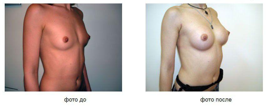 Увеличение груди, подмышечное расположение анатомических имплантов, доступ в подмышечной впадине.