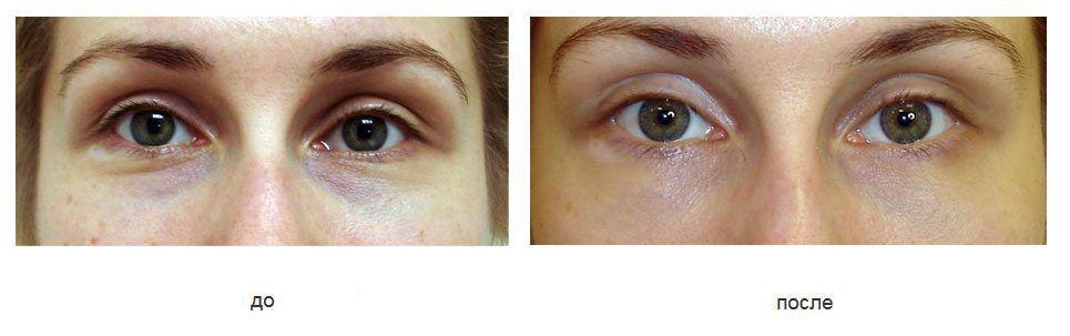 пациентка 28 лет,хорошее качество кожи позволило выполнить нижнюю блефаропластику через конъюнктиву.
