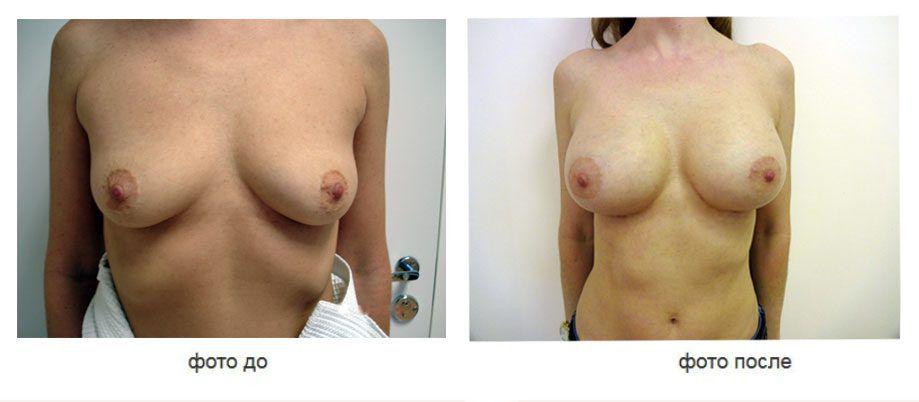 Увеличение молочных желез имплантами Allergun 510 стиль, субпекторальное (под мышцей) расположение имплантов.