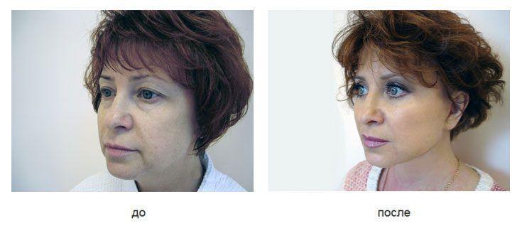 Спейслифтинг фото до и после